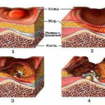 Гангрены и язвы на поверхности кожи