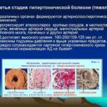 Гипертоническая болезнь третьей стадии