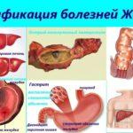 Хронические недуги пищеварительного тракта