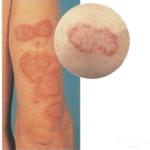 Наличие обострения кожных заболеваний