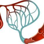 Нарушение циркуляции крови по мелким капиллярам