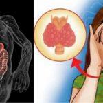 Нарушения в работе эндокринной системы
