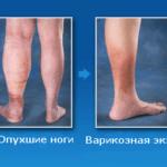Образование на коже язвенных поражений и рубцов