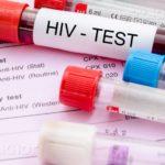 Обследование на ВИЧ