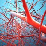 Патологические процессы капиллярной сосудистой сети