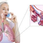 При бронхиальной астме