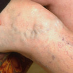 Проявление вен на поверхности кожи