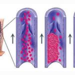 Развитие тромбофлебита