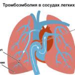 Риск тромбоэмболии