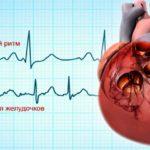 Серьезные нарушения сердечного ритма