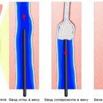 Склеротерапия на основе склерозанта