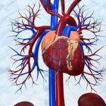 Состояние декомпенсации сердечно-сосудистой системы