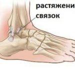 Травмы и растяжения мышечно-сухожильных и капсульно-связочных структур