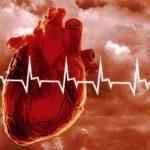 Тяжелая форма сердечно-сосудистых заболеваний