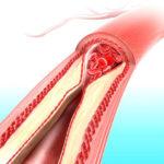 Уменьшение и полное рассасывание тромбов