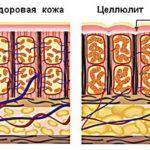 Утолщение подкожно-жировой ткани