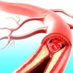 Застой крови и кислородное голодание половых органов