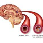 Атерокслероз сосудов головного мозга