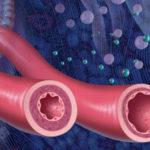 Инфекции, оказывающие непосредственное влияние на состояние сосудов