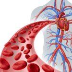 Нарушения микроциркуляции крови